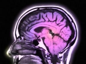 Cerveau haut potentiel